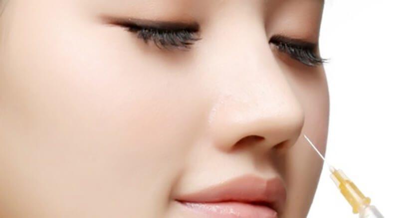 Phương pháp nâng mũi không phẫu thuật