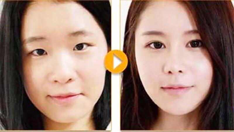 Phẫu thuật nâng mũi giúp cải thiện khuyết điểm mũi một cách tối đa