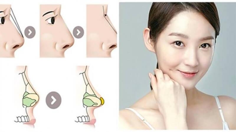 Nâng mũi cấu trúc, bí quyết cho mũi đẹp tự nhiên ở mọi góc nhìn