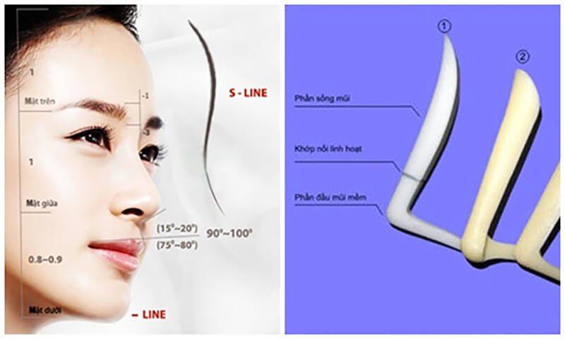 Ưu điểm vượt trội của phương pháp nâng mũi cấu trúc
