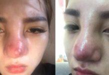 Những dấu hiệu nhiễm trùng sau khi nâng mũi và phương án khắc phục