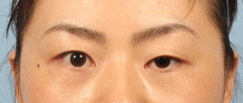 Mắt một mí thường khiến cho đôi mắt nhỏ và có cảm giác luôn u sầu mệt mỏi