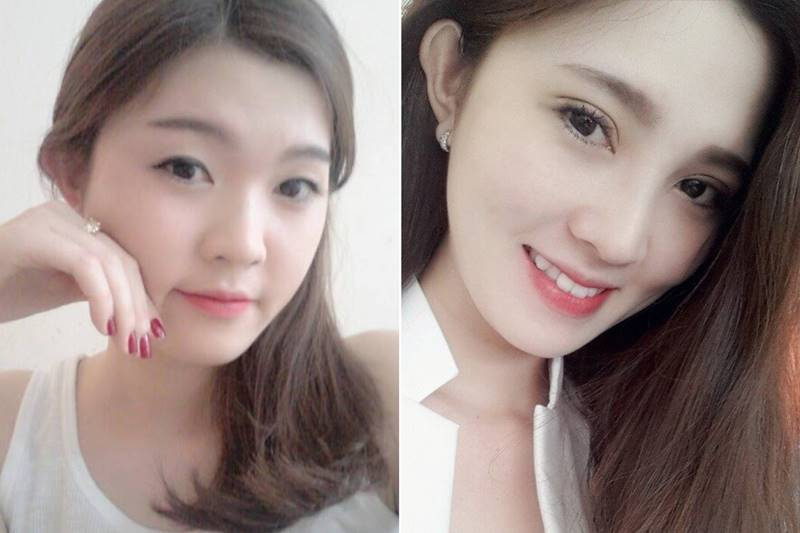 Trước và sau cắt mí mắt