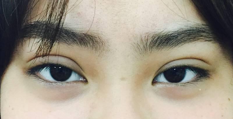 Hình ảnh sau khi cắt mí mắt