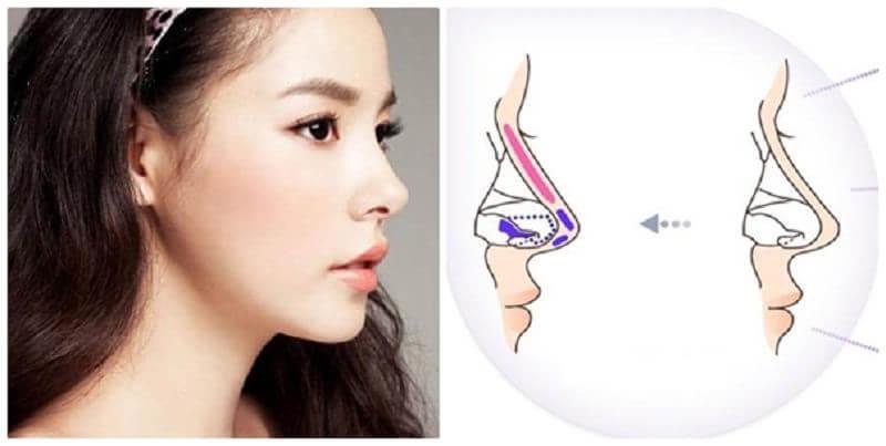 Nâng mũi bọc sụn sử dụng sụn nhân tạo và sụn tự thân để có một dáng mũi cao và thẳng