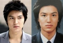 Phẫu thuật nâng mũi Hàn Quốc cho nam giới: Nên hay không?