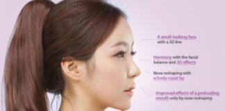 Bạn có biết nâng mũi S line là gì không?