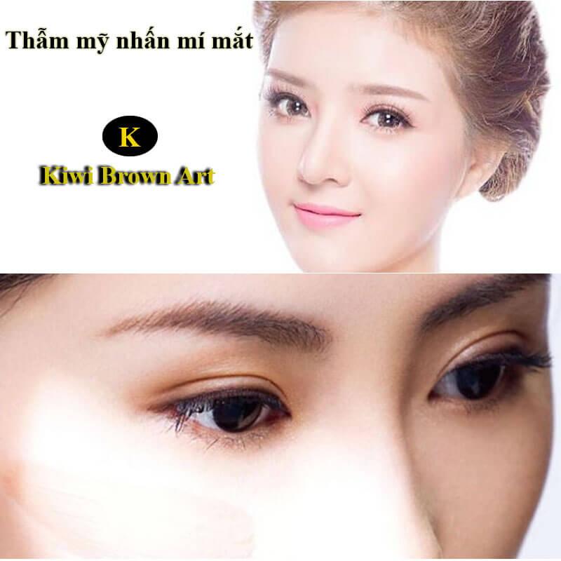Nhấn mí mắt Hàn Quốc tạo đôi mắt đẹp tự nhiên