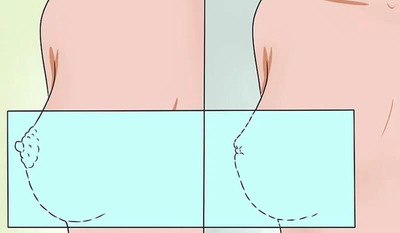 Để ý các vết lõm ở ngực hoặc các biến đổi ở đầu vú