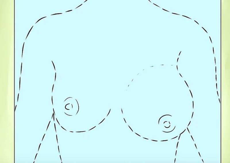 Các thay đổi về hình dáng và kích thước ngực