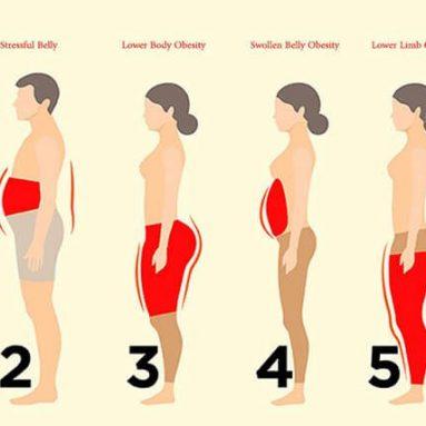 Biết được giảm mỡ, nơi tích mỡ – bạn sẽ giảm được mỡ