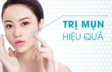 Xịt trị mụn Skin Fresh: Loại sạch mụn, da sáng tươi